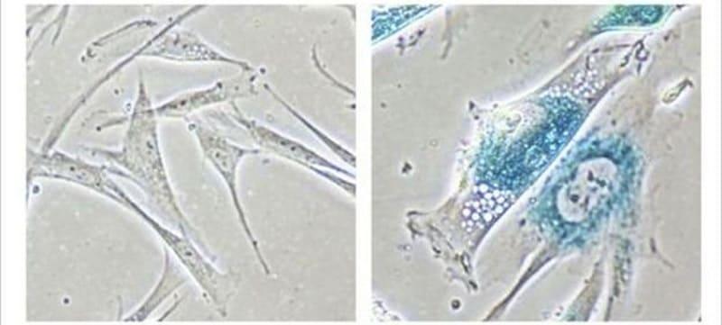 Учеными найден способ обратить процесс старения клеток